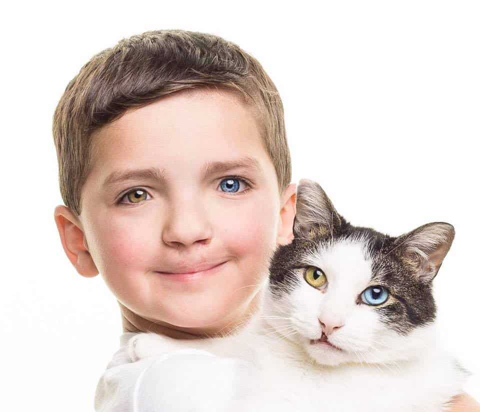 A cat and a boy having different eye ball colors are looking straight into the camera.